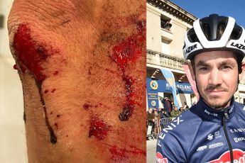 Richardson op brute wijze aangevallen en beroofd: 'Ze trokken een 15 inch machete'